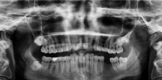 Medical-Diagnostic-Imaging-on-FocusEverything